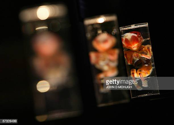 Preserved human embryos are pictured at Bodies the Exhibition in London 12 April 2006 The exhibition provides an upclose look inside skeletal...