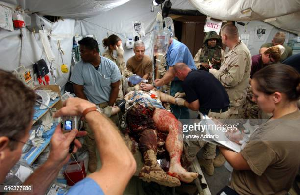 United States Military surgeons treat wounded soldiers in the Emergency room of the Balad Hospital at the Balad Air Force base in Iraq Hundreds of...