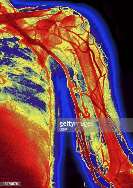 Upper Limb Angiography