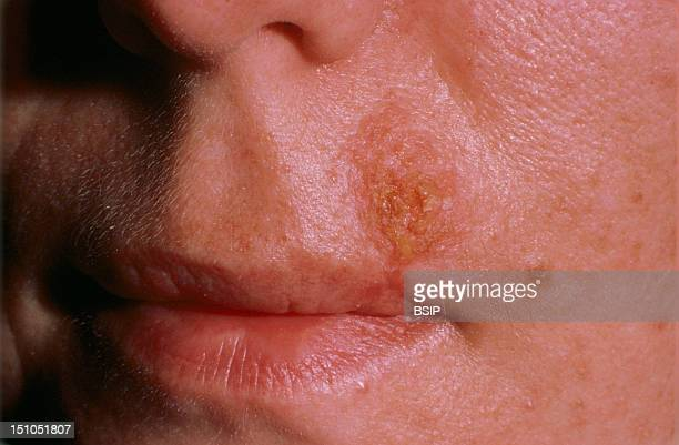Upper Lip Of 30 Year Old Man.