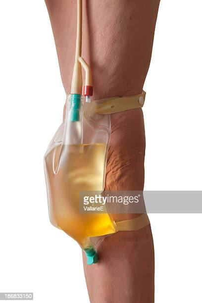 urinary catheter in use - urine stock pictures, royalty-free photos & images