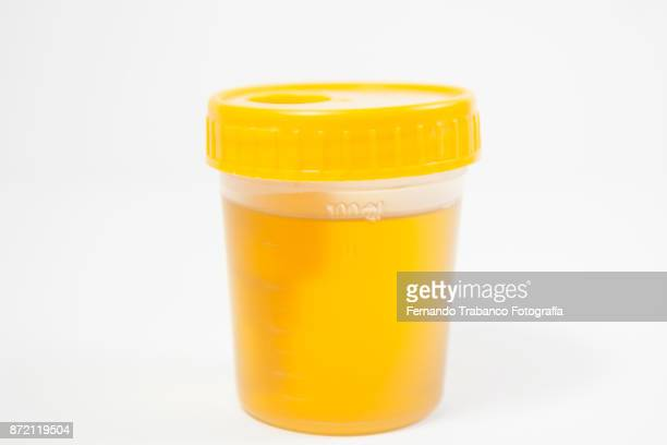 urine analytical - urine sample stock photos and pictures