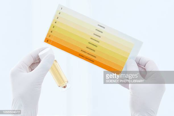 urine sample in container and chart - urine stock pictures, royalty-free photos & images