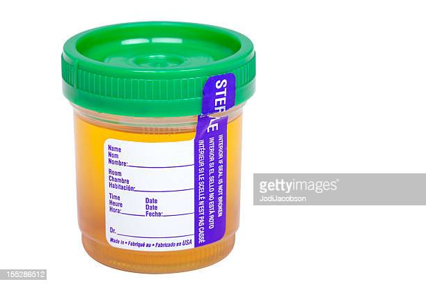 urine sample - urine sample stock pictures, royalty-free photos & images