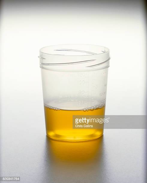 urine sample - urine stock photos and pictures
