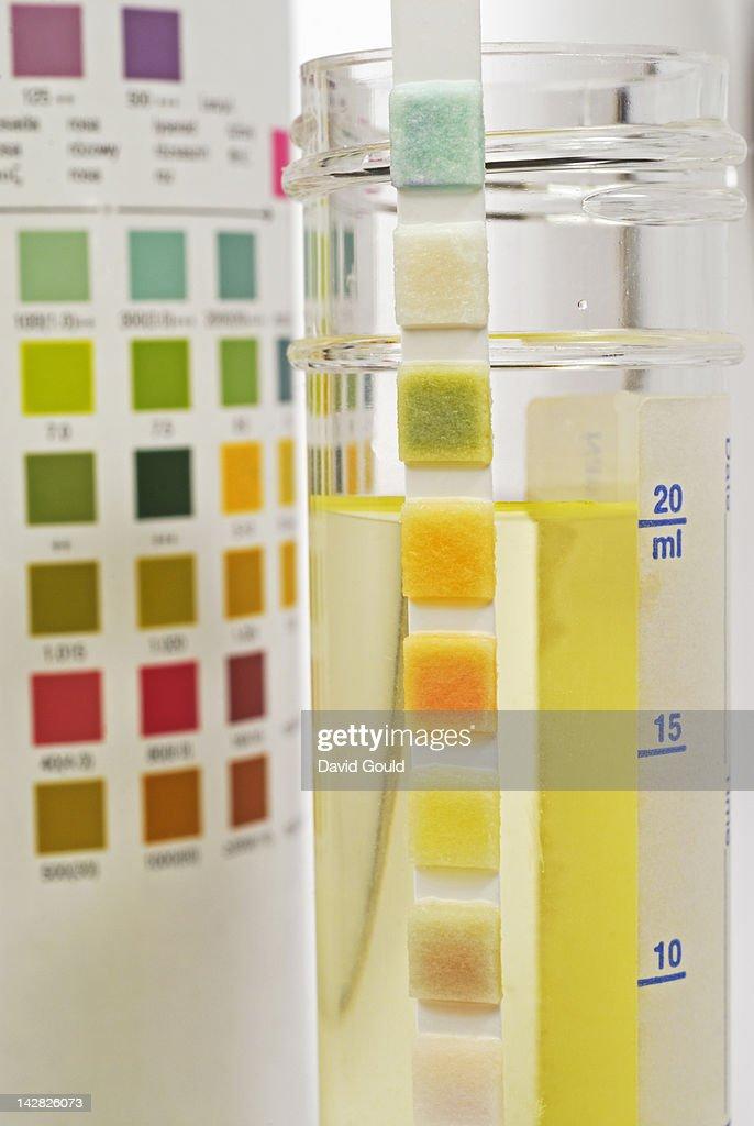 urine sample test strip high-res stock photo
