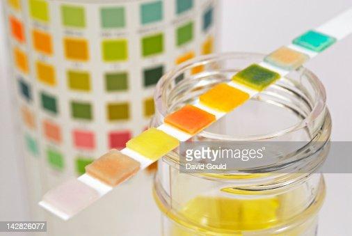 urine sample test strip stock photo