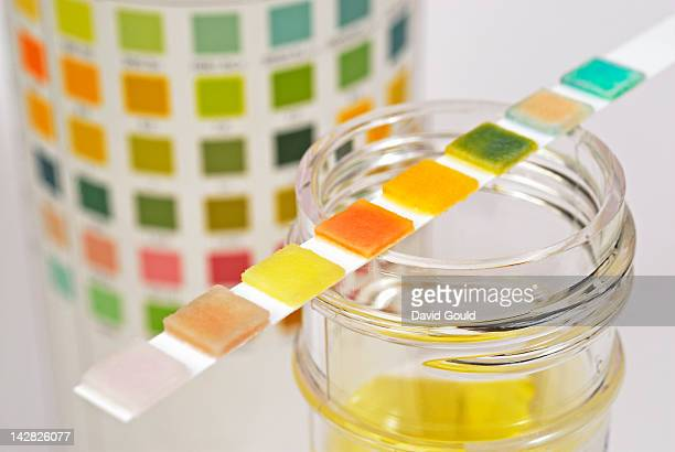 urine sample test strip - urine sample stock photos and pictures