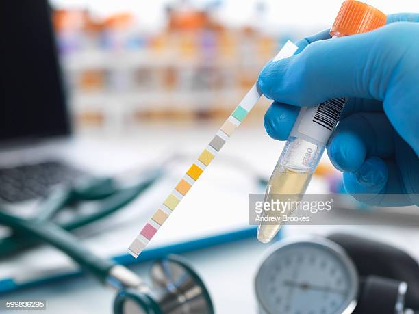 urine sample with test strip showing results - urine sample stock photos and pictures