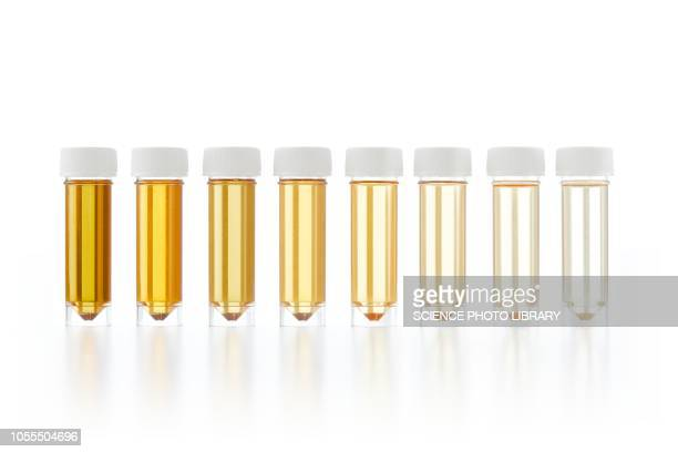 urine samples for analysis - urine stock pictures, royalty-free photos & images