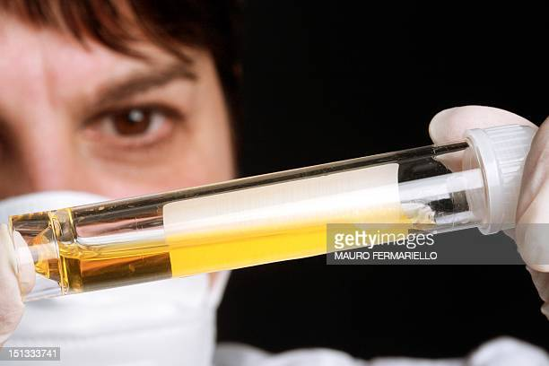 urine samples - urine sample stock photos and pictures