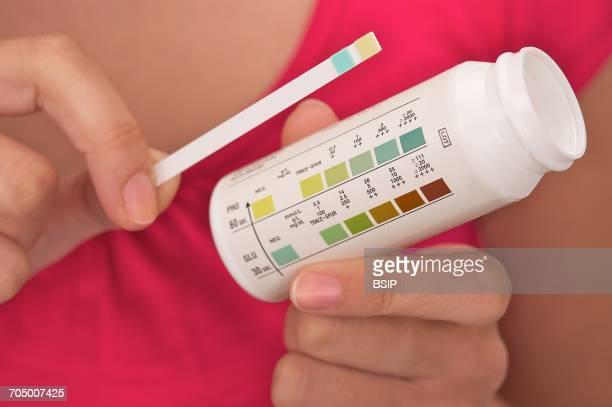 Urine test result