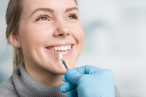 Using shade guide at mouth to check veneer of tooth 1126187604