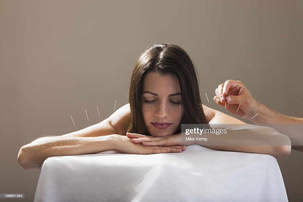 USA, Utah, Orem, Close-up of woman with acupuncture needles in her arm and shoulders : Stock Photo