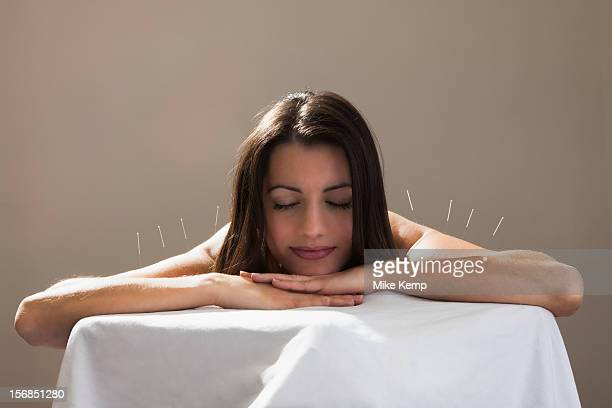 USA, Utah, Orem, Woman laying on stomach with acupuncture needles in her shoulders