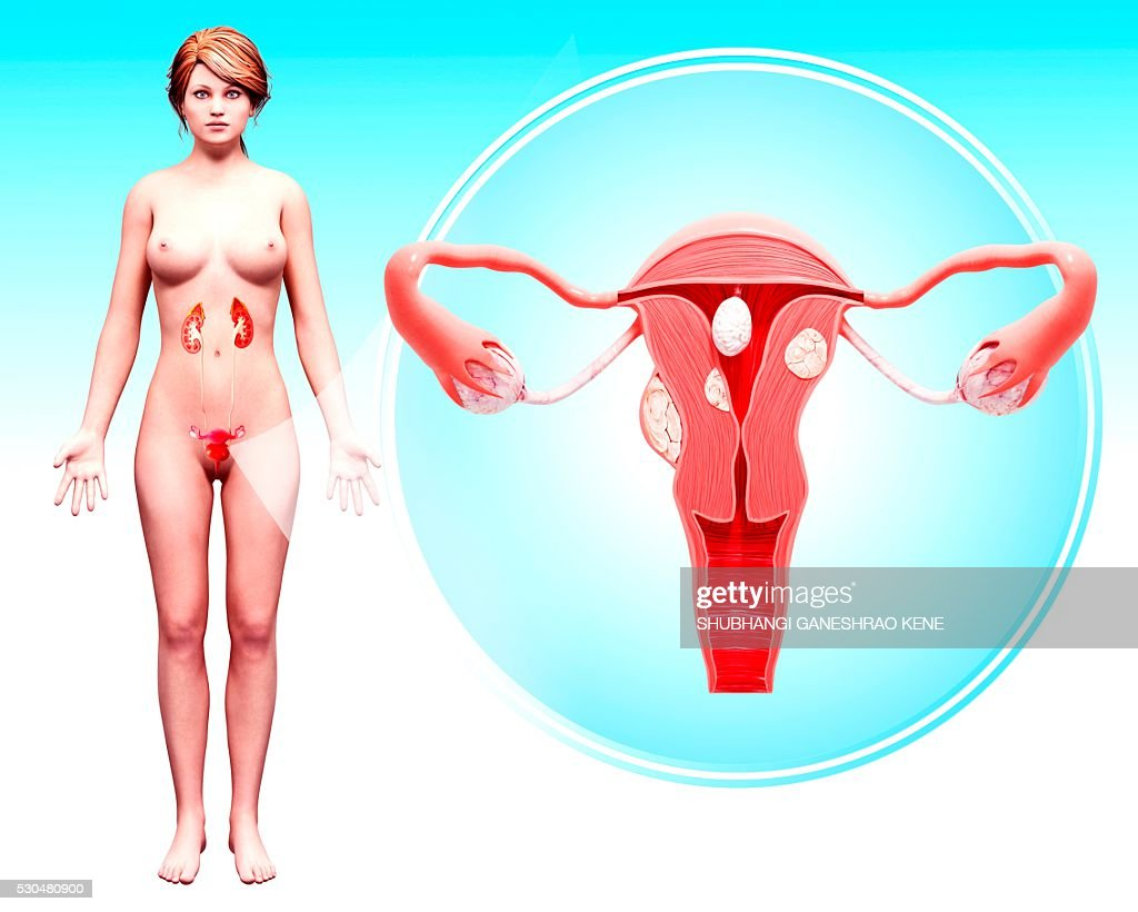 Uterine cancer, computer artwork. : Stock Photo