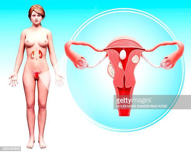 uterine cancer, computer artwork. - female genital organs photos et images de collection