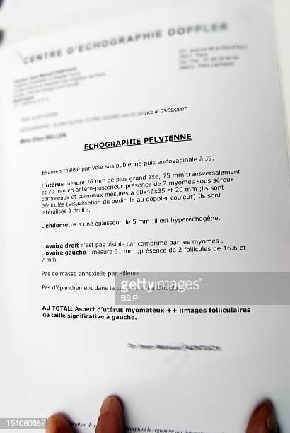 Uterine Fibroma, Sonography