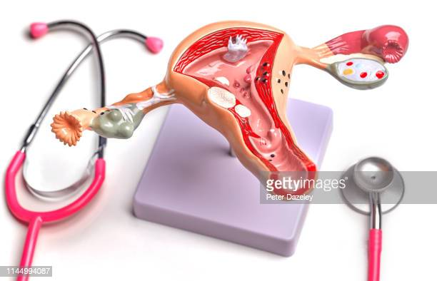 uterus and ovary anatomical model showing common pathologies - vrouwelijk geslachtsorgaan stockfoto's en -beelden
