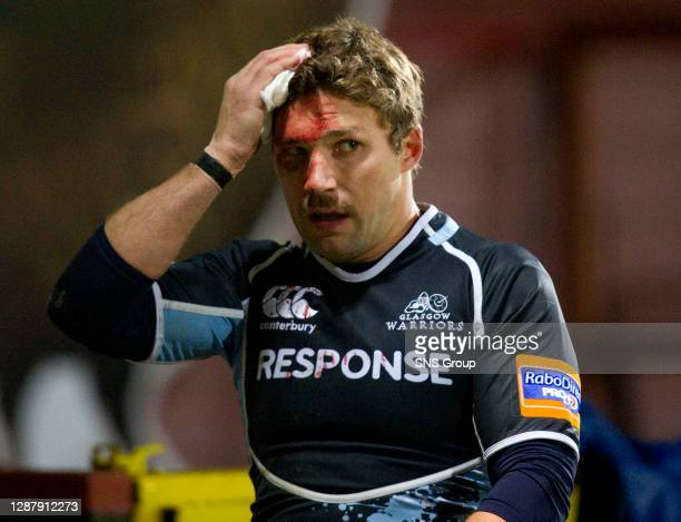 V ULSTER.FIRHILL - GLASGOW.Glasgow Warriors ace Chris Cusiter tries to stop blood streaming from a head wound