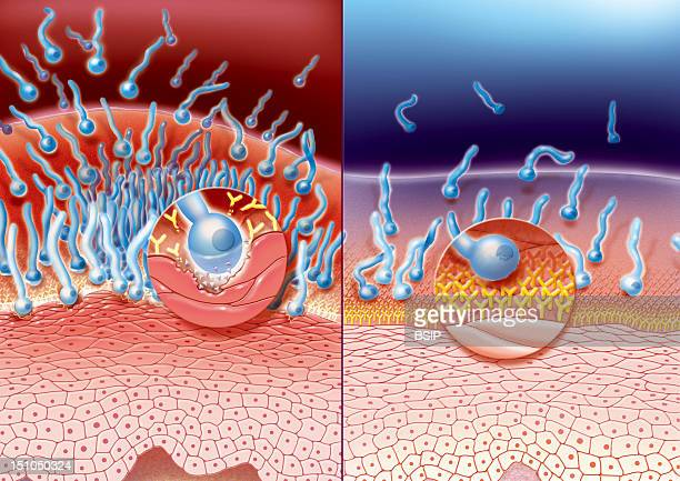 Vaginal Mucosa Infected By Candida Albicans Yeast Infection Which Invade The Epithelial Wall Destroying The Protective Superficial Layer Of...