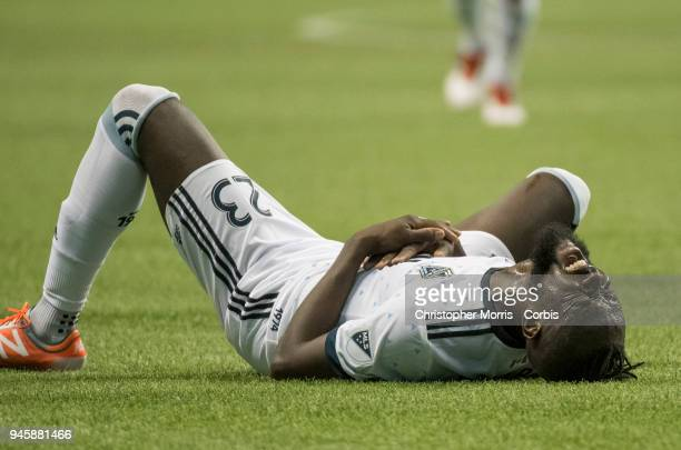 Vancouver Whitecaps forward Kei Kamara lies on the ground reacts aftetr an injury during a match against Los Angeles Galaxy at BC Place on March 24...
