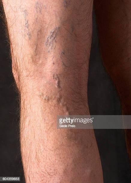 varicose veins on a man's leg - varices fotografías e imágenes de stock