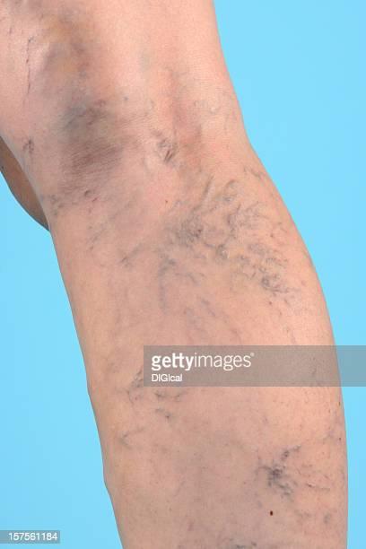 venas varicosas en las piernas - varices fotografías e imágenes de stock