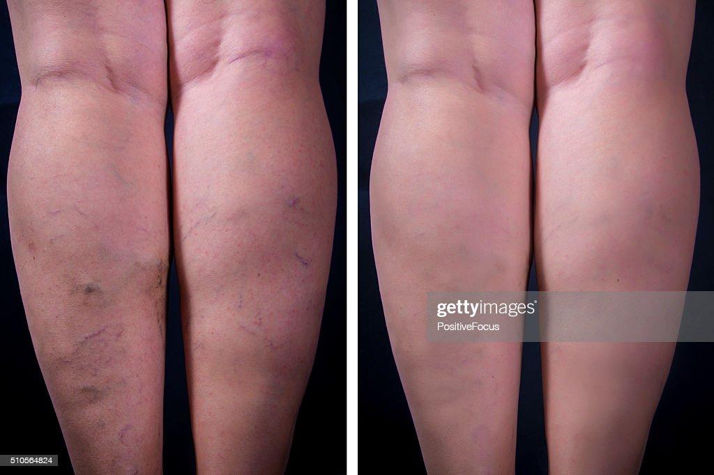 Varicose veins : Stock Photo