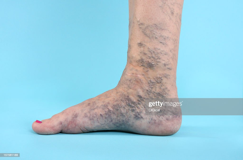 Varicose Vien on foot : Stock Photo