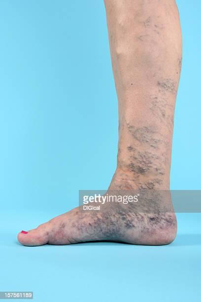 varicosa vien en las piernas y pies - varices fotografías e imágenes de stock