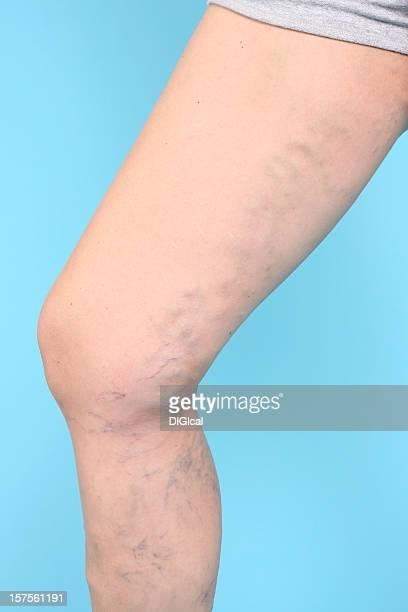 varicosa vien en las piernas - varices fotografías e imágenes de stock