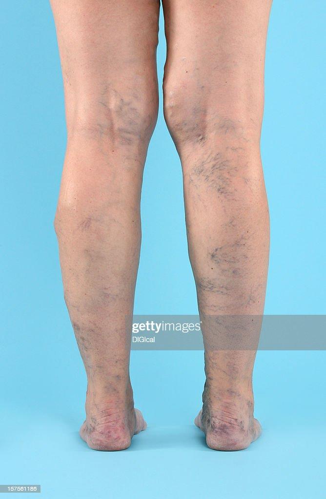 Varicose Vien on legs and feet : Stock Photo