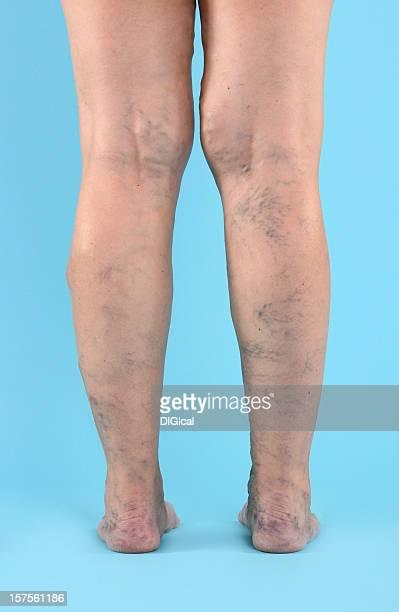 varicosa vien en las piernas y los pies - varices fotografías e imágenes de stock