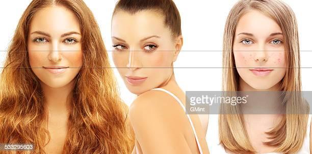 diversi problemi della pelle. freckles, acne, pigmentazione - acne rosacea foto e immagini stock