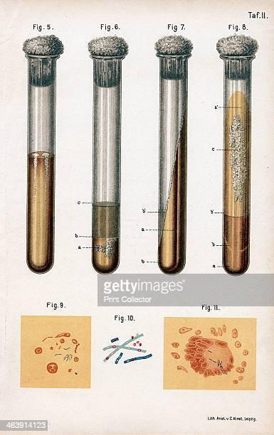 Various types of bacteria, 1889. 5: pneumonia culture; 6: albumen from a rotten egg; 7& 8: tuberculosis as prepared by Koch; 9: sputum from a TB...