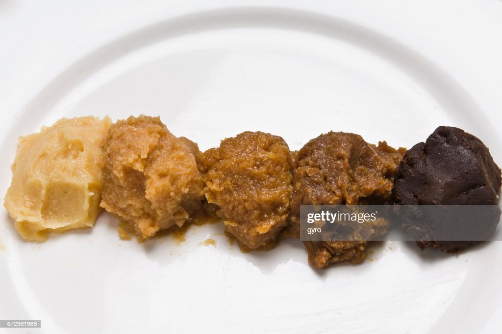 Various types of miso : Stock Photo