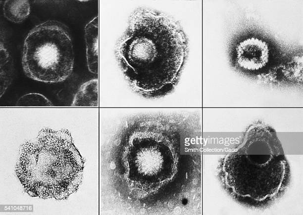 Various viruses from the Herpesviridae family seen using an electron microscope 1981 Amongst these members is varicellazoster and herpes simplex type...