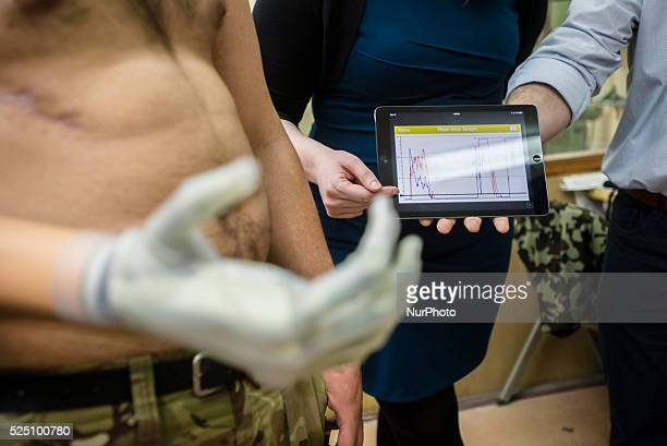Vasyl Pelysh wears his new bionic hand gifted by Ukraine Prosthetic Assistance Project Vasyl lost his hand in captivity at Donbas when proRussian...