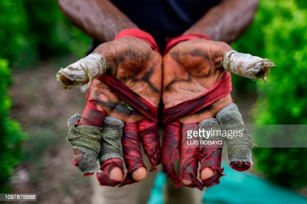 Venezuelan migrant working as a Raspachin shows his hands as he works at a coca plantation in the Catatumbo region Norte de Santander Department in...