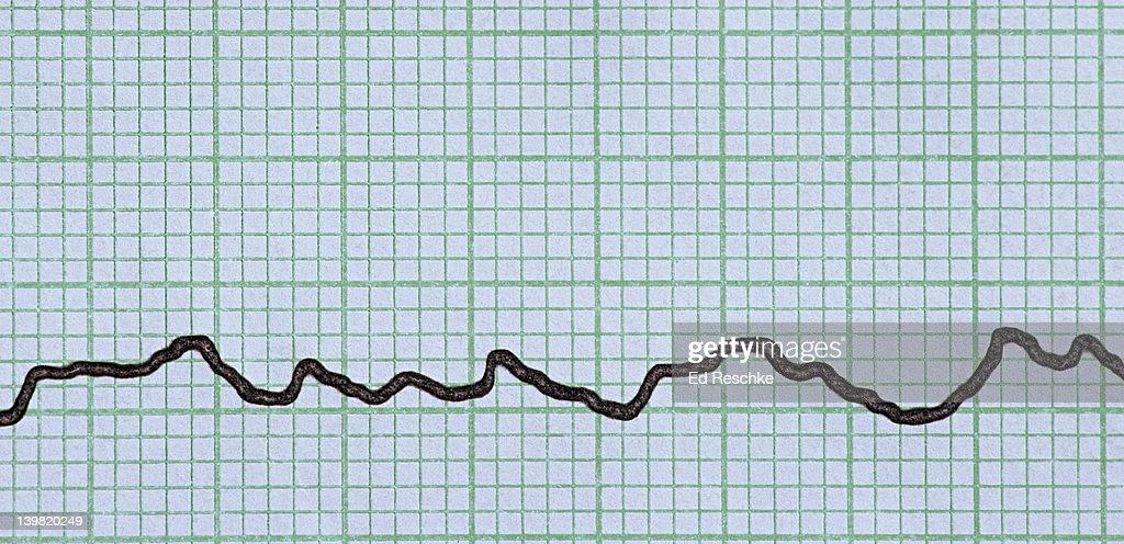 Ventricular Fibrillation Abnormal Electrocardiogram The