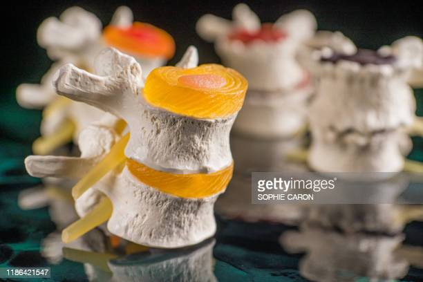 vertebrae and discs. neurodegenerative disease. - herniated disc stock pictures, royalty-free photos & images