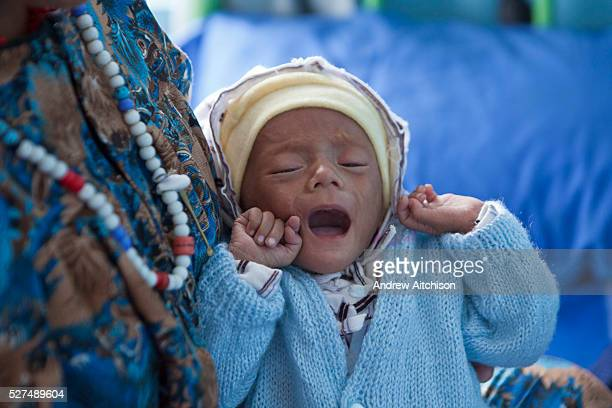 A very malnourished Nepalese baby cries while in the arms of this mother on a ward in the Friends of Needy Children Nutritional Rehabilitation Centre...
