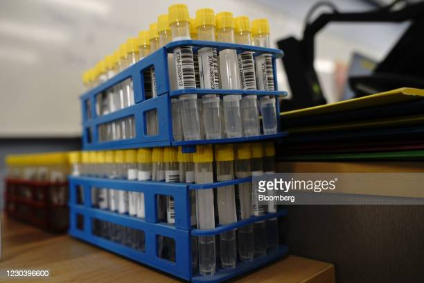 Vials of saline for nasal swab samples at a Covid-19 testing site operated by the County of San Diego on the campus of California State University...