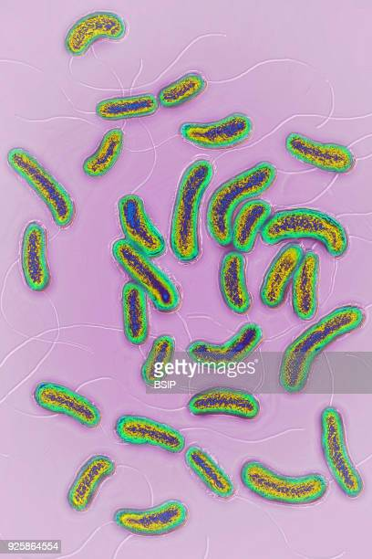 Vibrio cholerae bacterium responsible for cholera Image produced using optical microscopy X 2000
