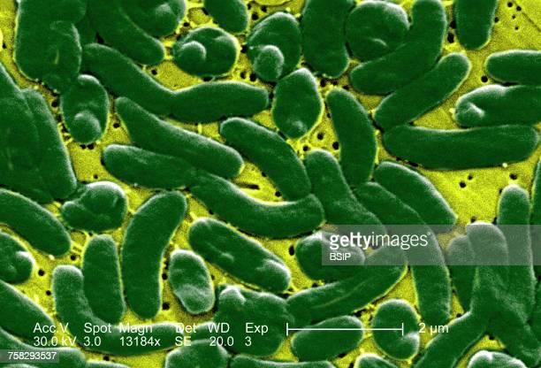 Klebsiella Pneumoniae Nutrient Agar Bacillus Subtili...