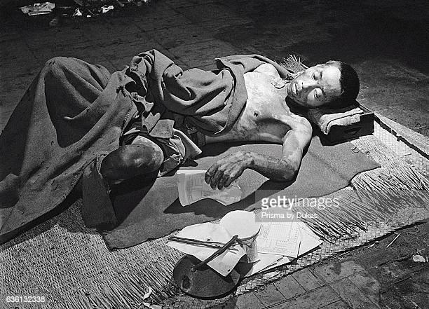 Victim in Hiroshima after Atomic Bomb strike in 1945.