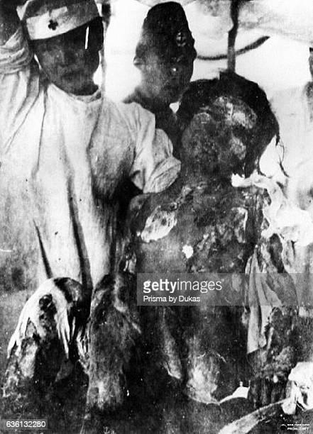 victim in Nagasaki after Atomic Bomb strike in 1945