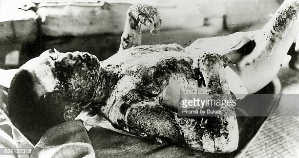 Victim in Nagasaki after Atomic Bomb strike in 1945.