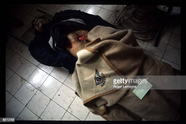 A victim of a shelling attack lies in the morgue December 1 1994 in Sarajevo BosniaHerzegovina When Bosnia declared its independence in March of 1992...
